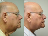 This is a gentleman with excessive laxity of his neck who underwent a direct necklift at the same time as another operation in his neck to remove lymph nodes.