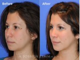 This is a young woman who desired refinement of her nasal bridge, improved breathing, and a better profile.  She underwent a primary rhinoplasty and chin augmentation. The after photo is 9 Months Post Operative.