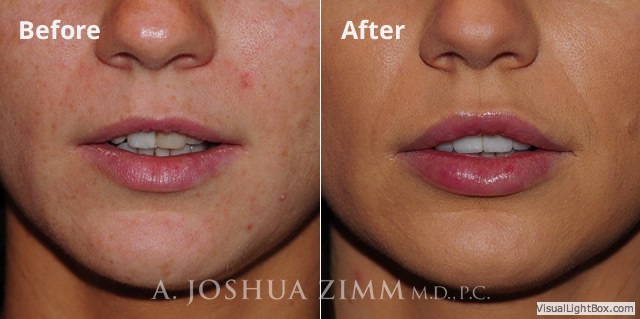 Lip Injections NYC | Dr  Joshua Zimm | Manhattan Chin Implant