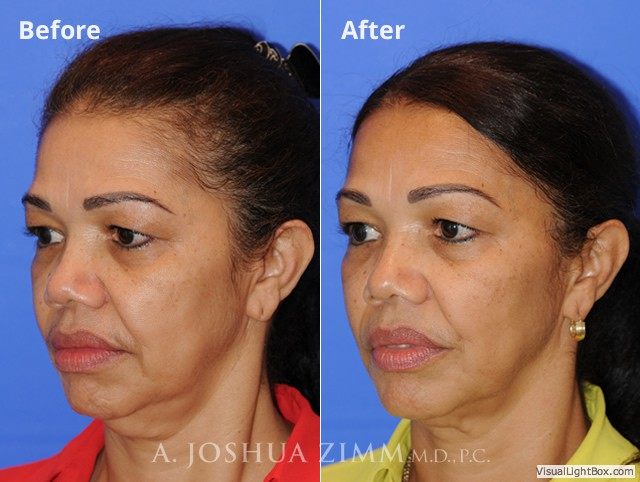 Ultherapy Before & After Gallery | NYC | Joshua Zimm, M D