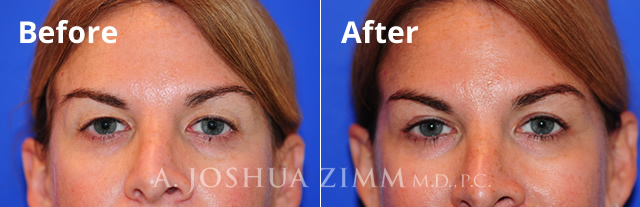 Before and After Blepharoplasty Photo