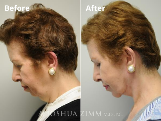 Before and After Facelift Photo