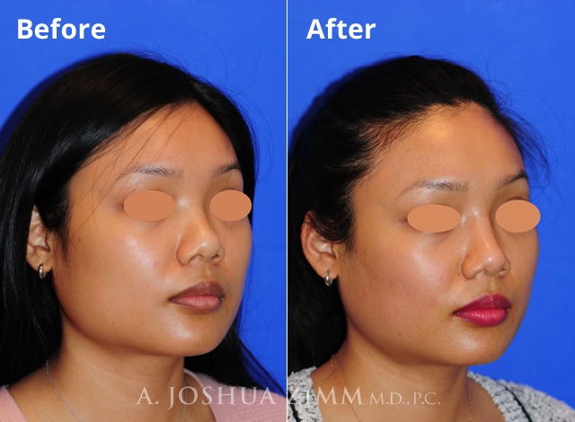 Before and After Injectable Rhinoplasty