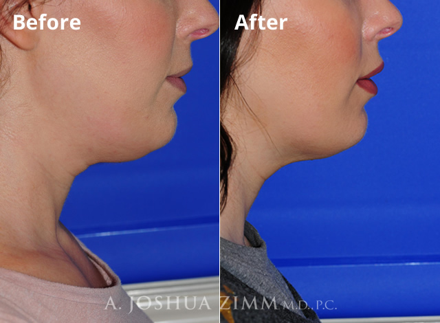 Before and After Kybella Photo
