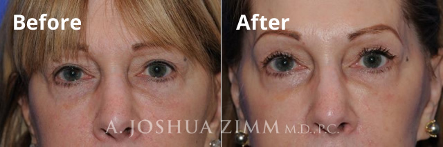 Before and After Laser Skin Resurfacing Photo