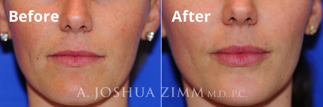 Before and After Lip Augmentation Photo