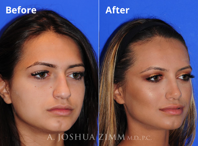 Top 10 Myths About Rhinoplasty Nose Job Surgery | Facial
