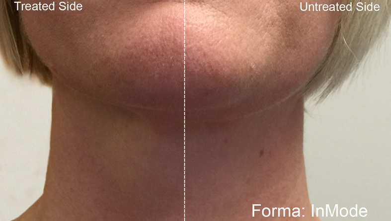 Before and After Forma Chin and Neck