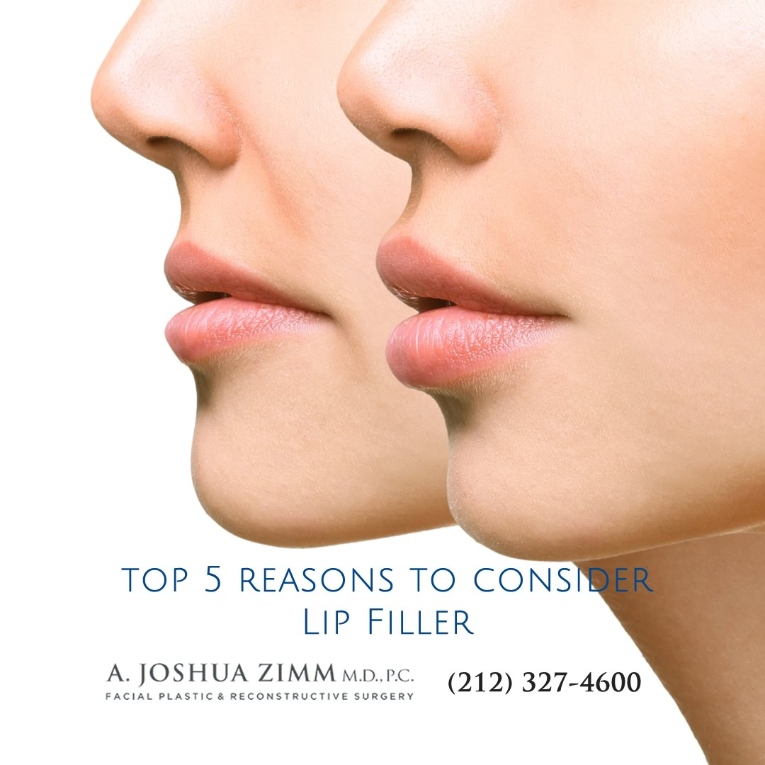 5 reasons to consider Lip Filler NYC