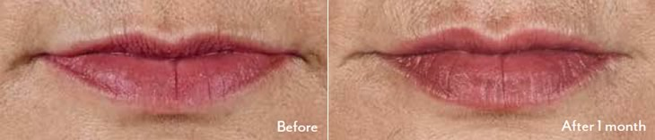 Juvederm Volbella XC Before and After