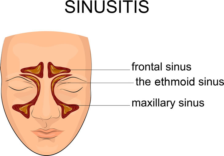 abt adult by caused fever in infection sinus