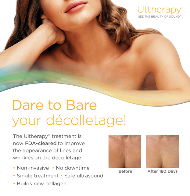 Ultherapy for the chest decolletage manhattan ny