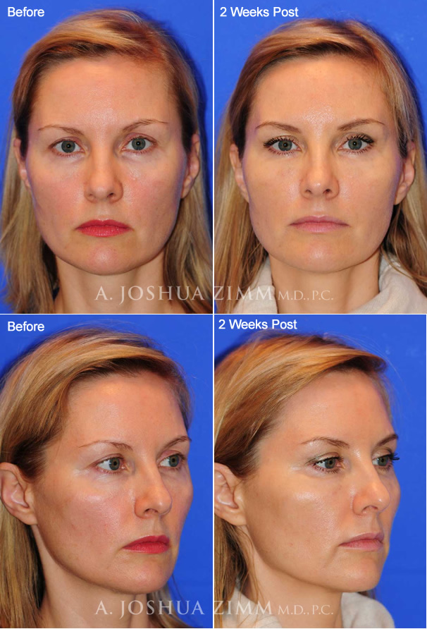 Juvederm Voluma by Dr. Joshua Zimm Manhattan