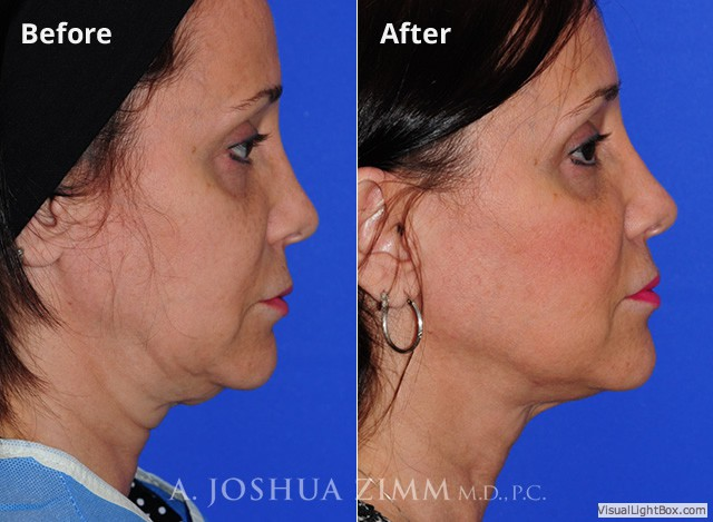 FaceTite Embrace RF Minimally-Invasive Face Contouring Mahattan NYC