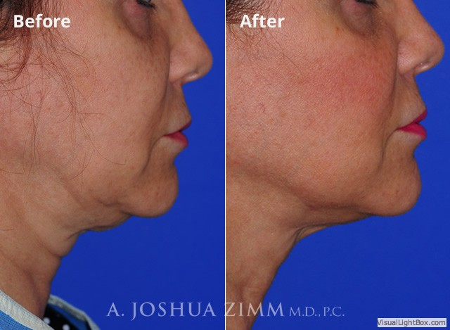 FaceTite Embrace RF Minimally-Invasive Face Contouring